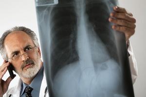 Радиоактивное облучение вызывает рак